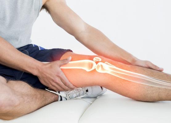 Um desportista com as mãos no início e final do joelho e com uma montagem onde se vê o desenho dos ossos que compõem a perna